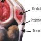 Tendinite rotulienne